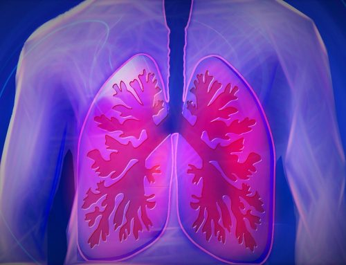 Pyreos supports life-changing advances in tackling lung cancer and other major lung diseases